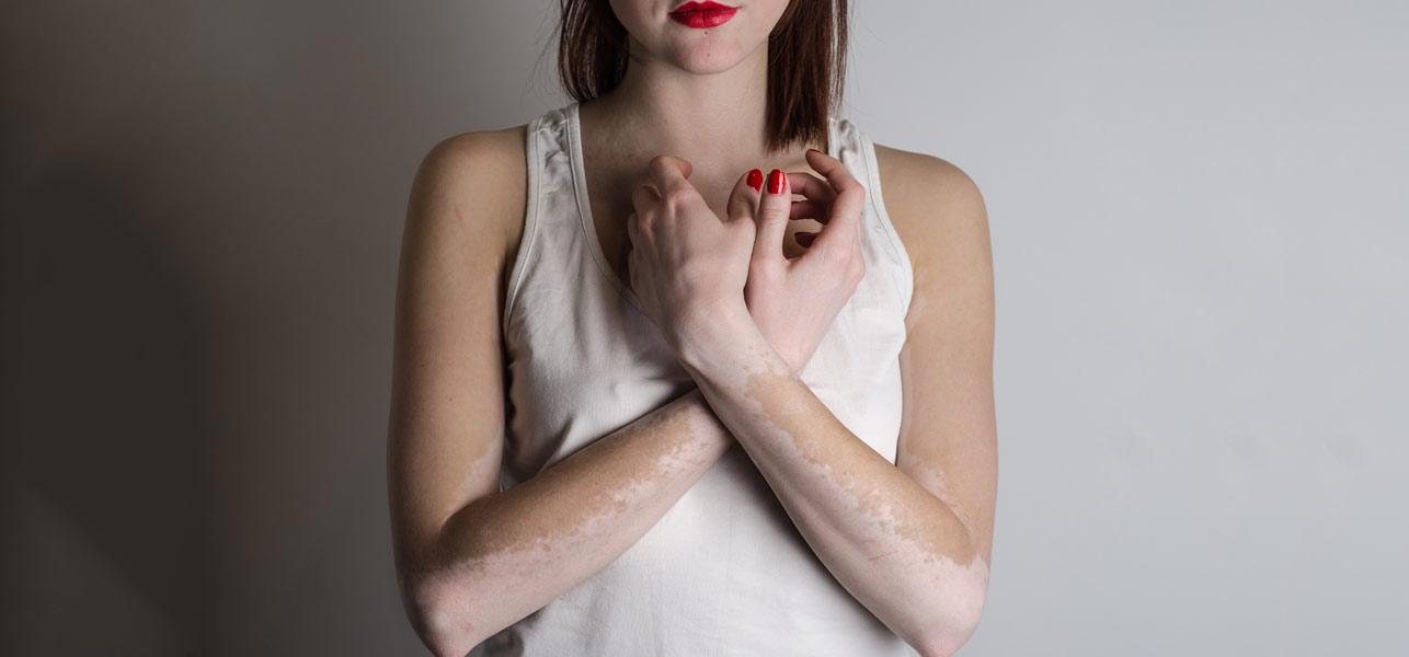 Herbal Treatment For white spots on the skin (vitiligo) | AyushVeda
